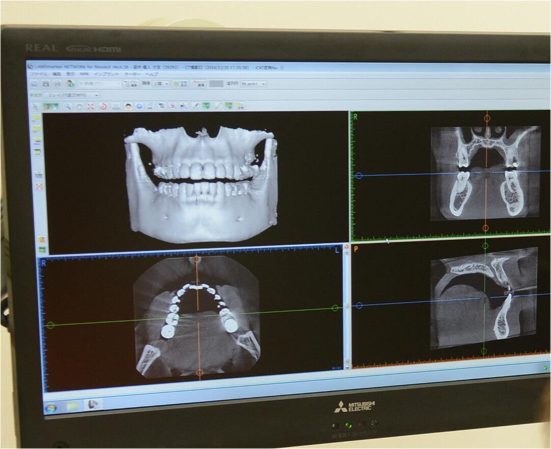 口腔外科の画像